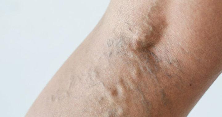 visszér a lábakon tünetek kezelése
