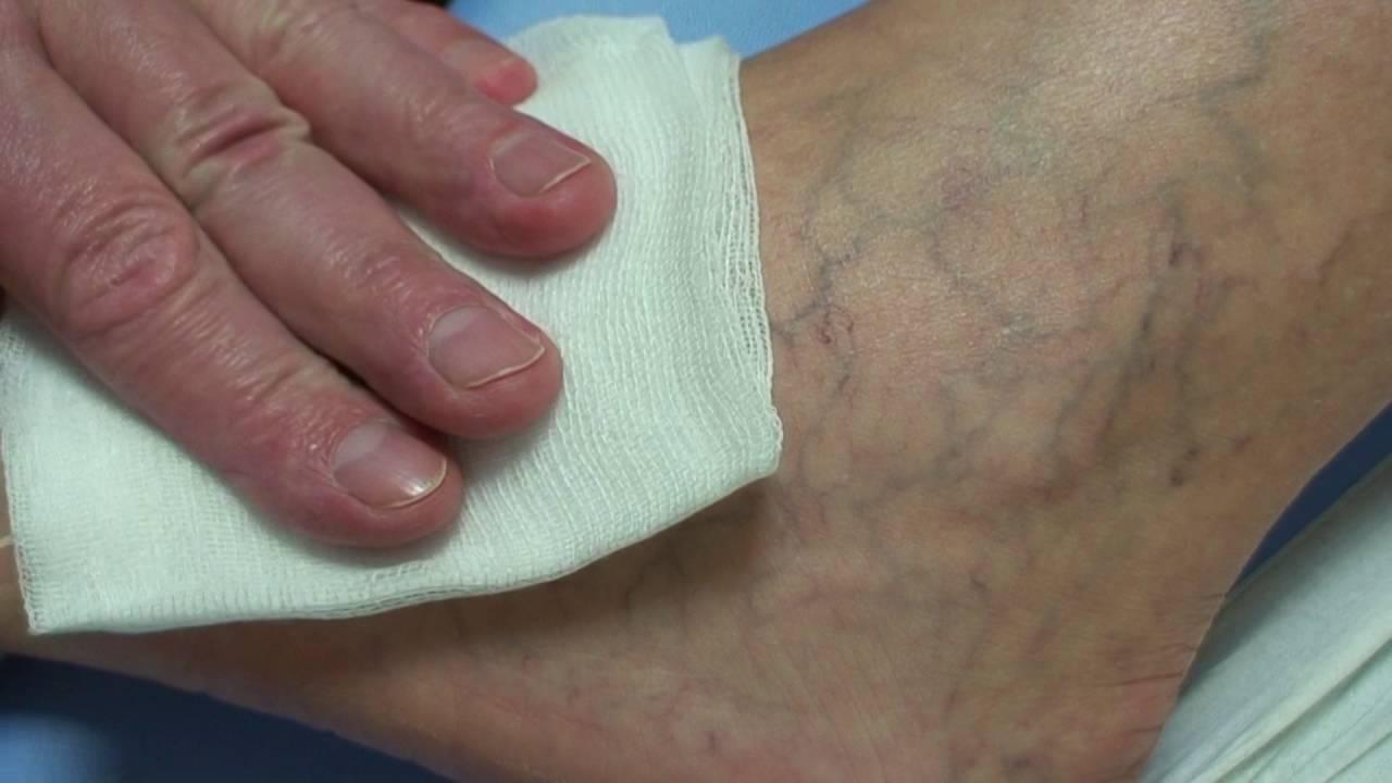 visszér fotóműtét mely sebész kezeli a visszérbetegségeket