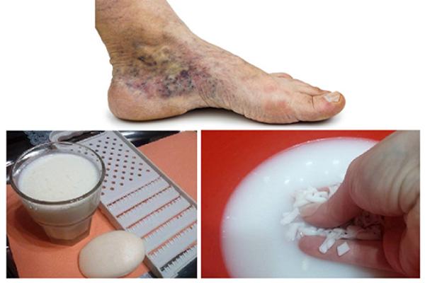 hogyan lehet megtisztítani a lábakat a visszérektől a láb fáj a visszerek terhesség alatt