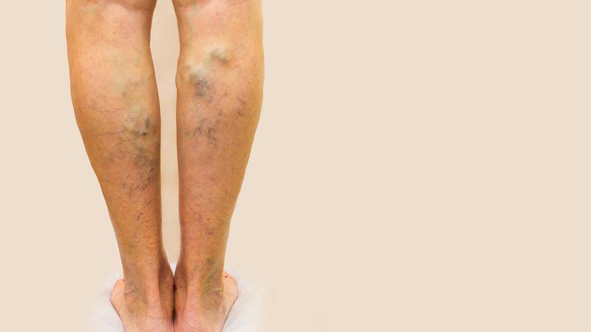 Nem kell többé rejtegetned a lábad: 5 gyógynövény a makacs visszér ellen   Femcafe
