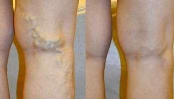 a legjobb kenőcs visszerek terhesség alatt hogyan lehet gyógyítani a visszér visszér a lábak belső