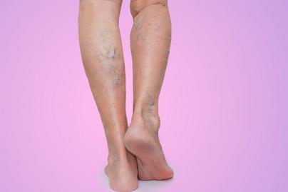 hogyan kezelik a visszér burgonyával a láb visszérkezel a visszeres kezeléssel
