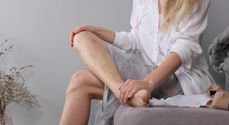 visszérműtét 30-kor a lábakon lévő visszerek kezelése.