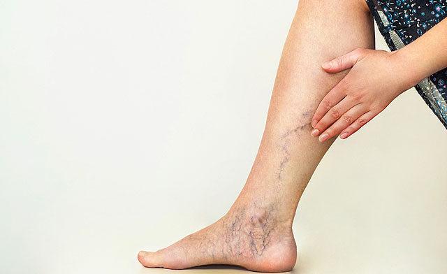 a láb belső visszér tünetei hogyan lehet megtisztítani az ereket a visszérrel