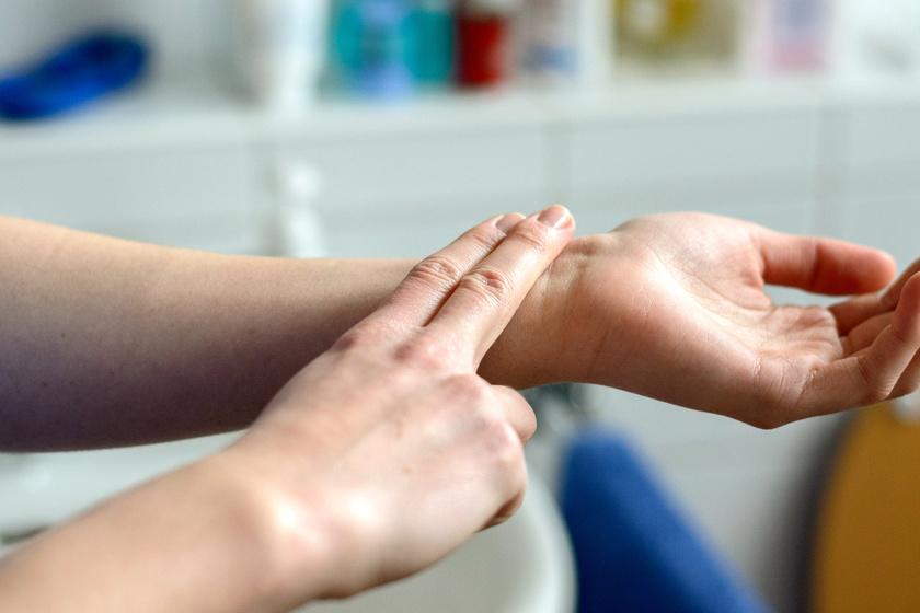 kompressziós terápia visszerek esetén ezüst hidak visszérrel