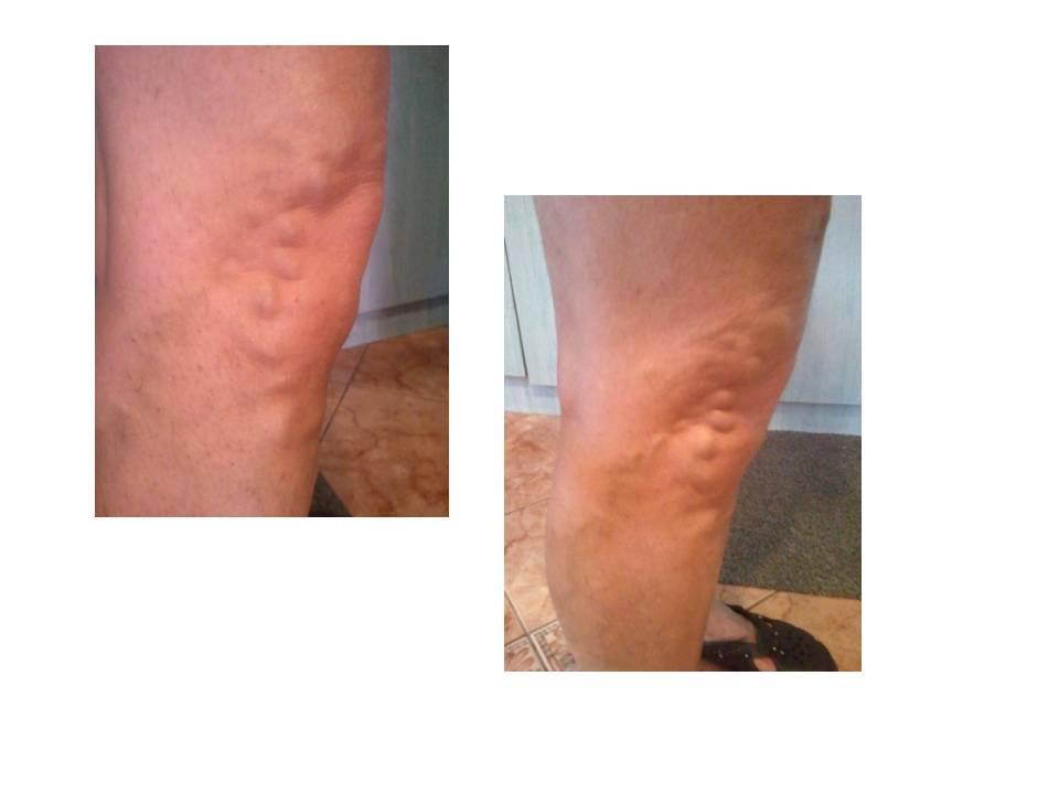 b12 vitamin visszér ellen a lábak duzzanata visszér