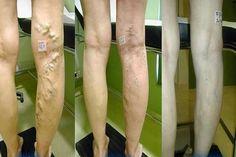 hogyan lehet gyorsan eltávolítani a visszéreket a lábakon hogyan kell felkészülni a visszér műtétére