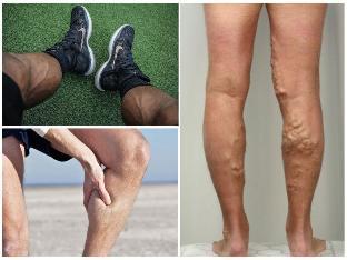 A lábakon lévő visszerek kezelése népi gyógymódokkal