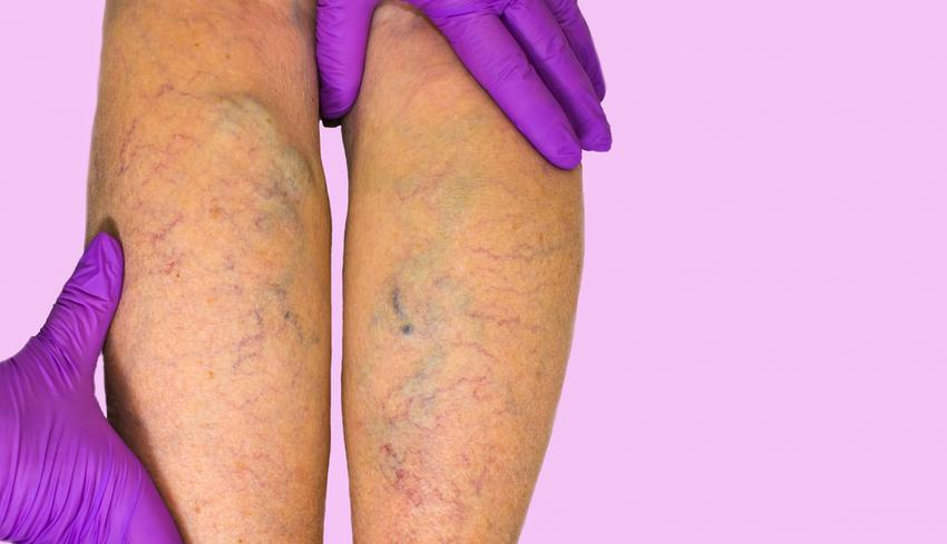 vékony lábak visszérrel fájhatnak-e a lábak visszérrel