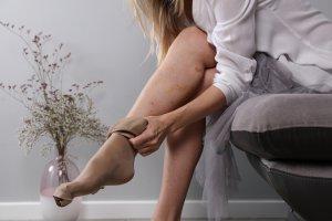 visszérerősítő visszér visszerek otthoni kezelése népi gyógymódokkal